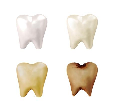 dientes con caries: Cuatro diferentes dientes de color blanco brillante, al amarillo, al decadente y putrefacto en un fondo blanco aislado por un concepto dentista Foto de archivo