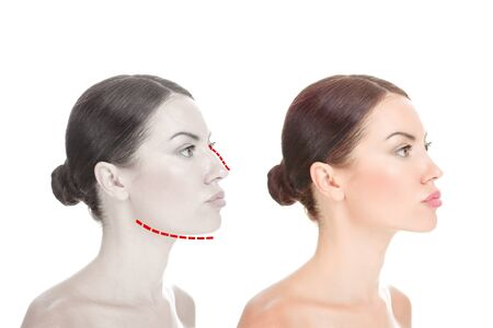 Face beauty, nose and chin correction, rhinoplasty, genioplasty, Chin augmentation surgery. Girl in side profile with Before and after mentoplasty and rhinoplasty images isolated on white background