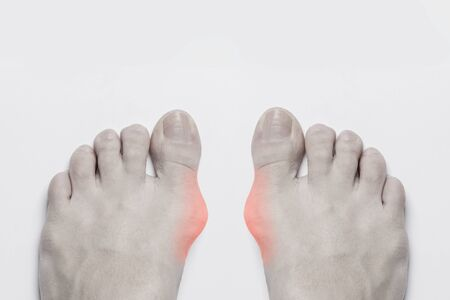 Bunion before surgical removal. Bunion at sides of both woman female feet, a common problem form wearing high heel. Bone and skin on the sides of joint of the big toe make abnormal foot shape
