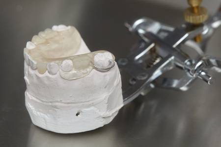 prothetic: Gray dental prosthesis teeth mold, clay human gums model in jaws prothetic laboratory Stock Photo
