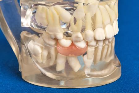 Human jaw or teeth orthodontic dental model with implants, dental braces