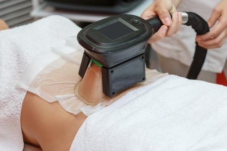 Mujer que obtiene el procedimiento de tratamiento de grasas con criolipólisis en gabinete cosmético profesional o centro de spa