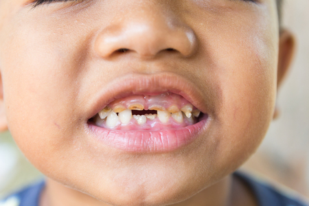 rotten teeth: little boy with a teeth broken and rotten.