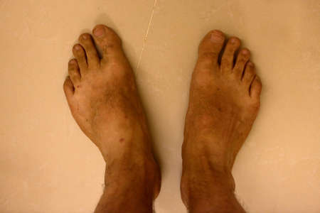 unkempt: Dirty and unkempt feet