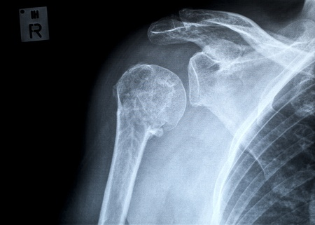 Fracture of the proximal human humerus, anterior-posterior view