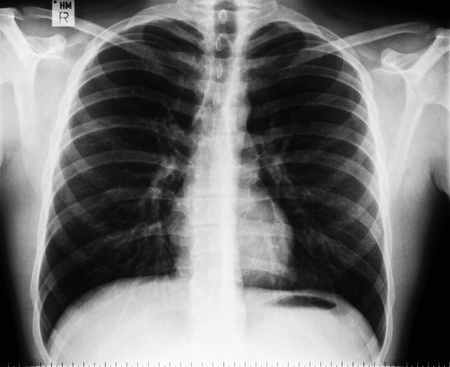 findings: Normal thoracic x-ray image without any findings Stock Photo