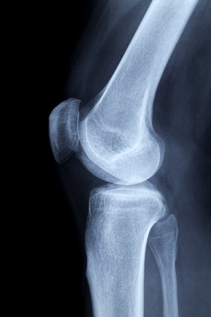 shin bone: Left human knee laterally, x-ray image without any findings