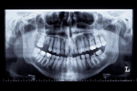 pr�voyance: Panorama image de rayons X d'une m�choire humaine