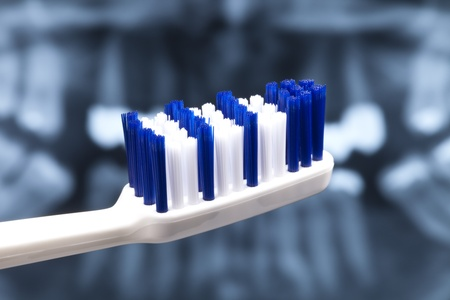 Normal blue-white toothbrush for the recommended three times a day tooth cleaning, close-up in front of a damaged set of teeth Stock Photo