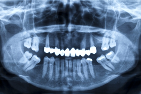 preventive medicine: X-ray image of a damaged set of teeth Stock Photo