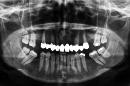 dentition: X-ray image of a damaged set of teeth Stock Photo