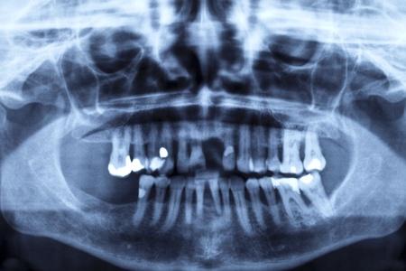 pr�voyance: Images de rayons X d'un ensemble de dents endommag�