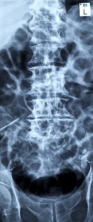 corcovado: Hernia de disco lumbar, columna lumbar radiograf�a antero-posterior de la imagen