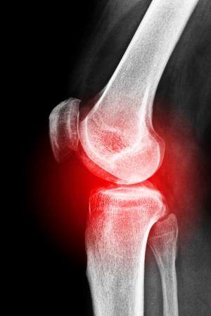 osteoporosis: Radiograf�a de una lesi�n de rodilla