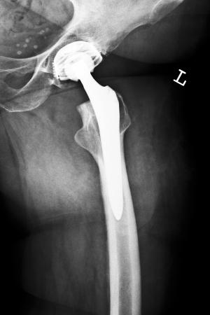 hip fracture: Posquir�rgico imagen de rayos X muestra una articulaci�n de cadera artificial
