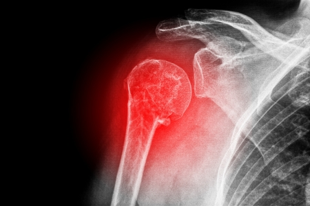 dislocation: X-ray of a sore shoulder Stock Photo
