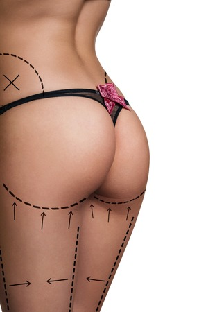 body line: Womans buttocks prepared to plastic surgery isolated