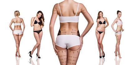silhouette femme: Les fesses de femme pr�par�s � la chirurgie plastique isol�