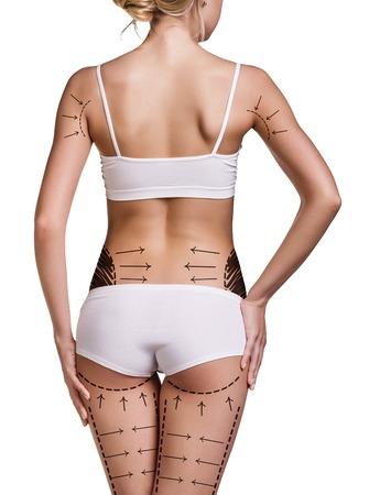 mujer celulitis: Nalgas de la mujer preparados para la cirugía plástica aislada