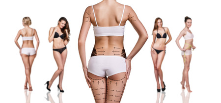 woman buttocks: Womans buttocks prepared to plastic surgery isolated
