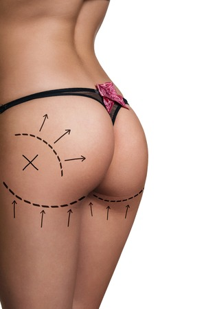 Womans buttocks prepared to plastic surgery isolated
