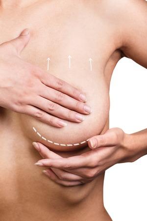 senos: Corrección Pechos con la ayuda de la cirugía plástica, aislado, fondo blanco
