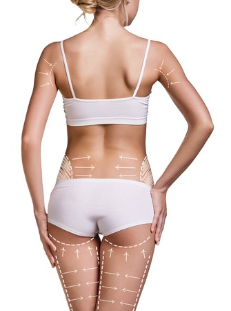 Slim womans body with correction lines on her back. Isolated over white background. Stock Photo