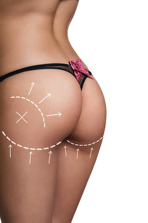 bare ass: Woman with correction lines in black thong. On white background