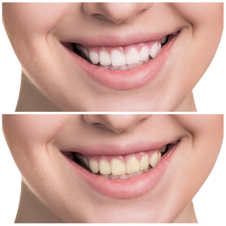 Young woman with healthy smile. Before, after concept Reklamní fotografie