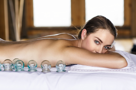 soreness: Woman laying on chest with cupping treatment on back