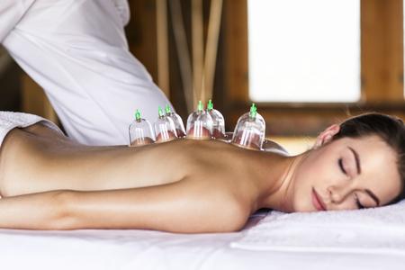 Donna che pone sul petto con coppettazione trattamento sulla schiena