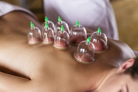 cupping glass cupping: Woman laying on chest with cupping treatment on back