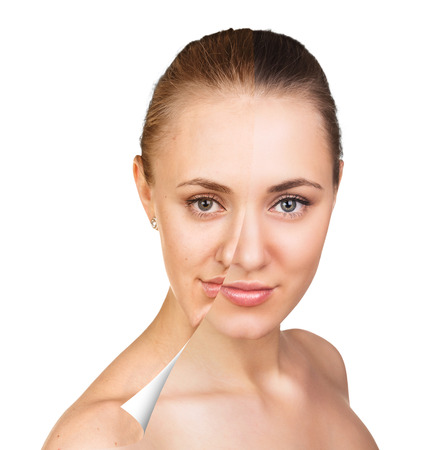 retouch: Young woman, isolated on white, before and after retouch, beauty treatment, skin care concept.