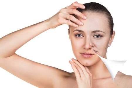 Mujer joven, aislado en blanco, antes y después del retoque, tratamientos de belleza, concepto de cuidado de la piel. Foto de archivo - 49694566