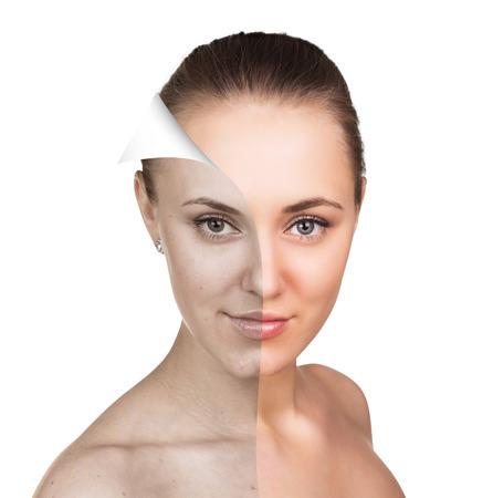 Jonge vrouw, geïsoleerd op wit, voor en na het retoucheren, schoonheidsverzorging, huidverzorging concept. Stockfoto