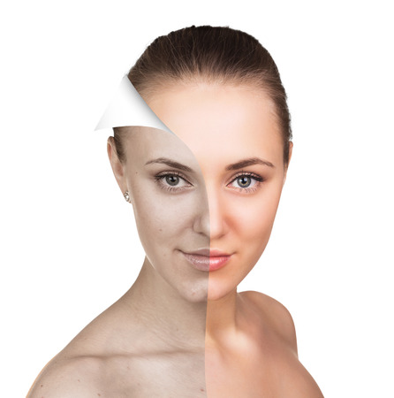 look after: Young woman, isolated on white, before and after retouch, beauty treatment, skin care concept.