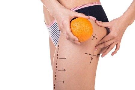 Body with cellulitis and orange fruit on white background, side view.