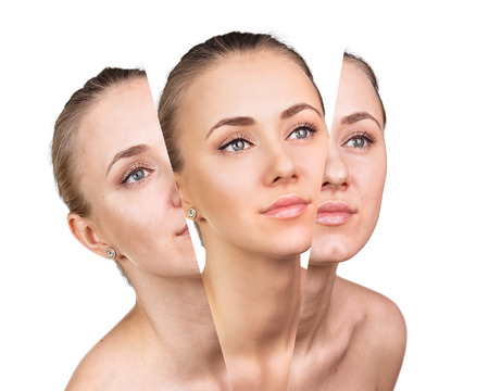 aging skin: Womans face, beauty concept before and after contrast. Renovation concept. Stock Photo