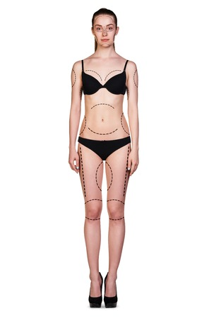plastic surgery: Beautiful woman in black underwear with arrows on her hips and belly Stock Photo