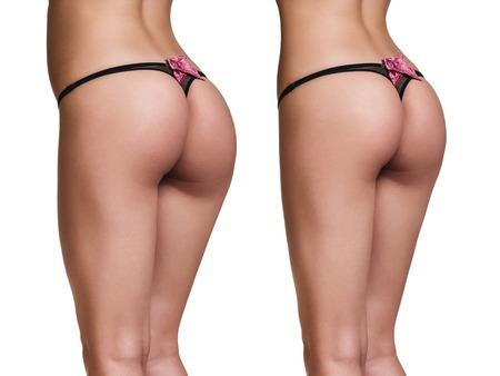 hintern: Gewichtsverlust. Foto des Gesäßes vor und nach.