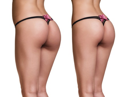 gesäß: Weight loss. Photo of the buttocks before and after.
