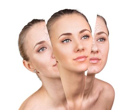 arrugas: La cara de la mujer, el concepto de belleza antes y después de contraste. concepto de renovación. Foto de archivo