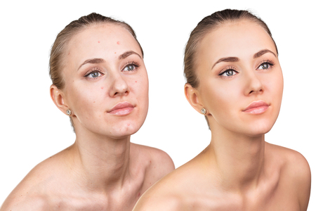 face: Comparative photos of young woman with skin problems. Before and after treatment.