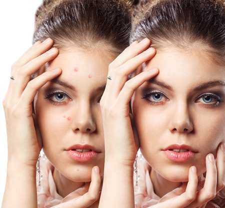 Mujer hermosa joven con la piel del problema en su cara Foto de archivo
