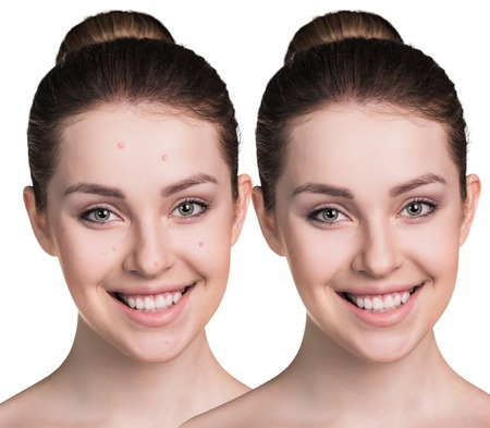 facial hygiene: Comparative photos of young woman with skin problems. Before and after treatment.