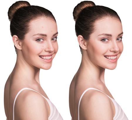 Vergleichs Fotos der jungen Frau mit Hautproblemen. Vor und nach der Behandlung. Standard-Bild - 54247838