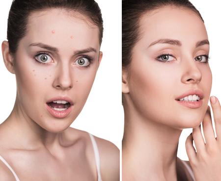 fotos comparativas de mujer joven con problemas de la piel. Antes y después del tratamiento.