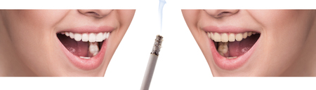 habbit: Smile before and after smoking. Concept of healthy smile