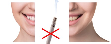 crossed cigarette: Smile before and after smoking. Concept of healthy smile