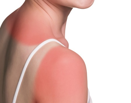 Sunburn spalla femminile isolato su sfondo bianco